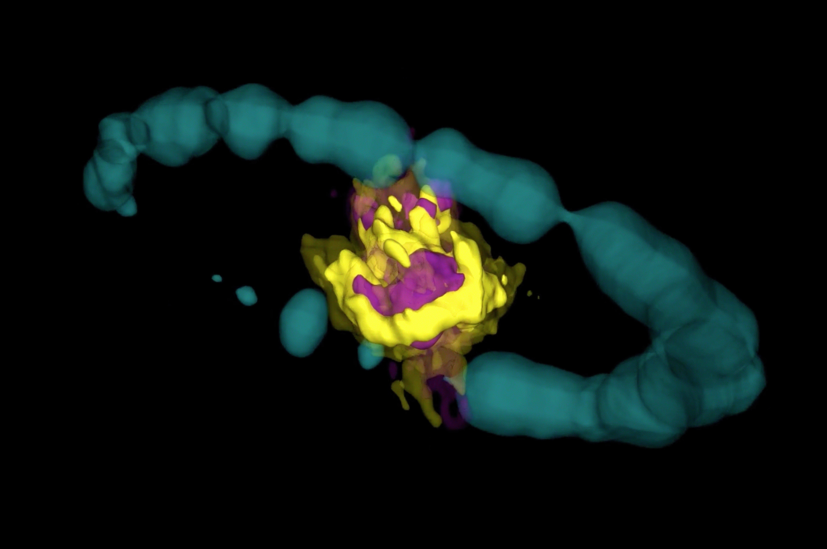 Remnant of Supernova 1987A