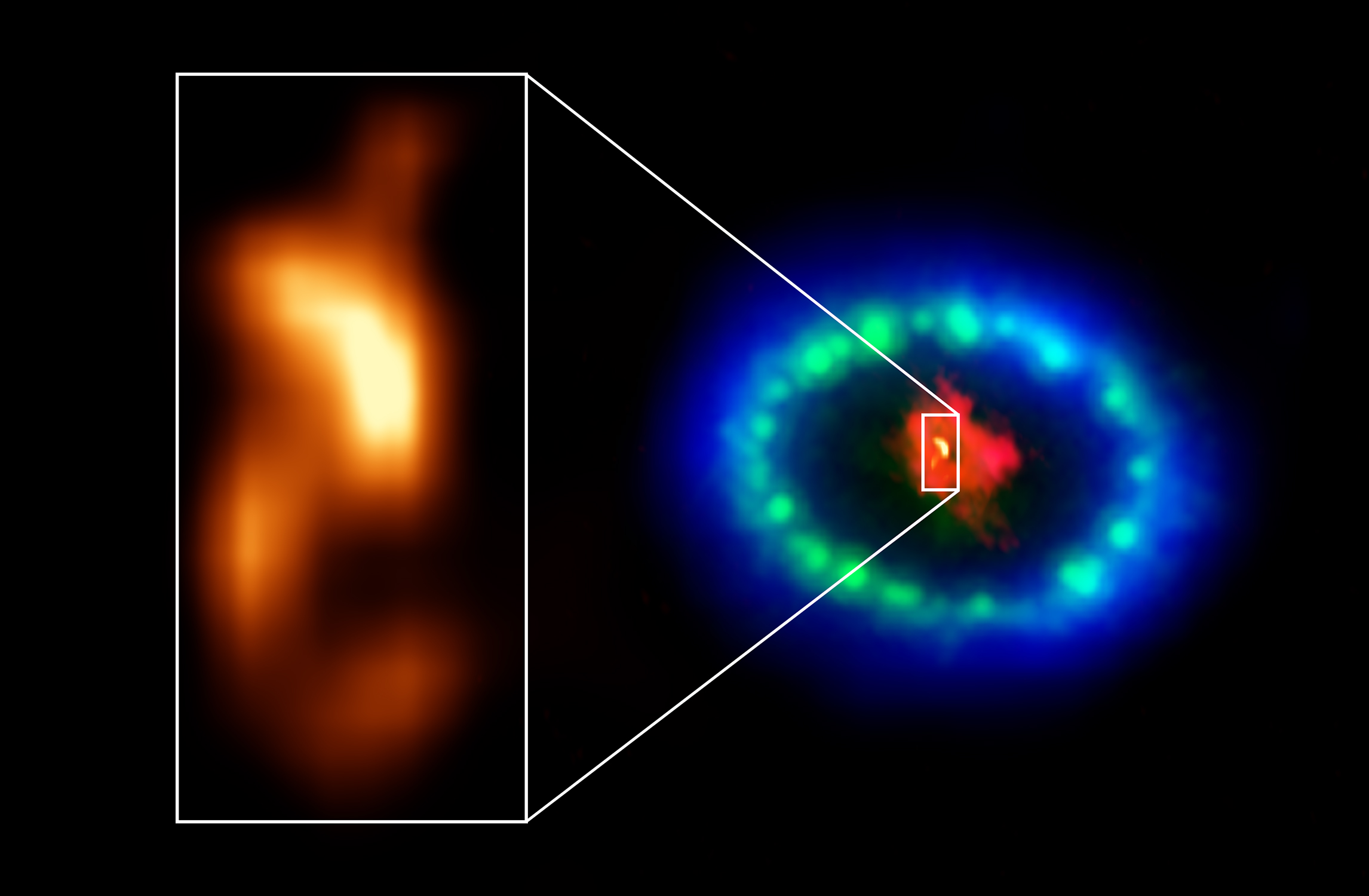 """The blob"" in Supernova 1987A"